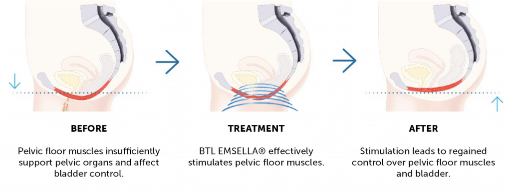 Emsella Before Treatment After