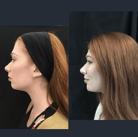MJ Facial Aesthetics Profile Left