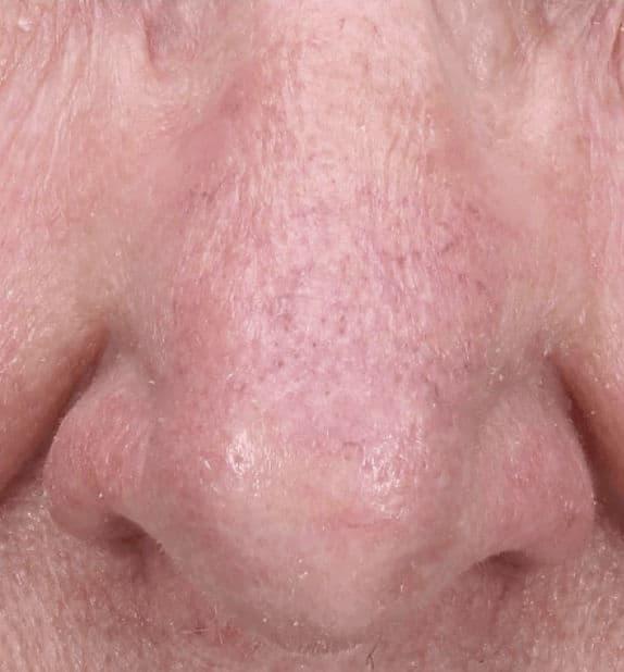 Skin Health After