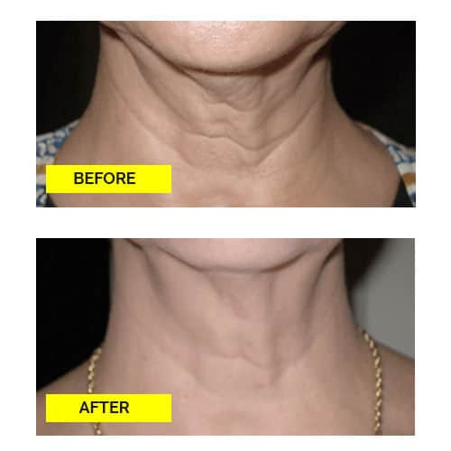 Skin Tyte II Before and After