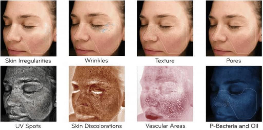 Visia Skin Analysis Scans