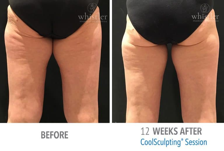 Coolsculpting Before & after 11