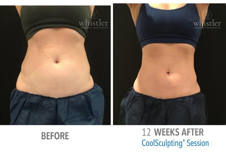 Coolsculpting Before & after 9