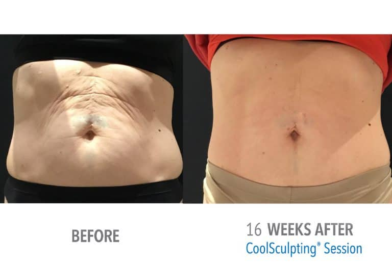Coolsculpting Before & after 12