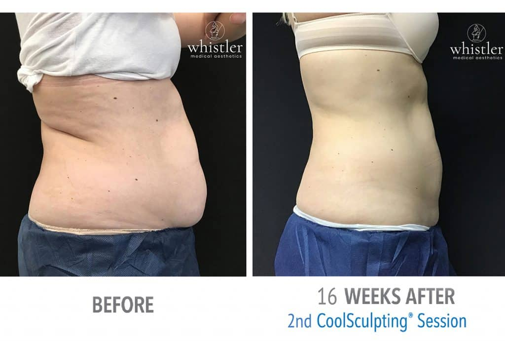 Coolsculpting Before & after 1