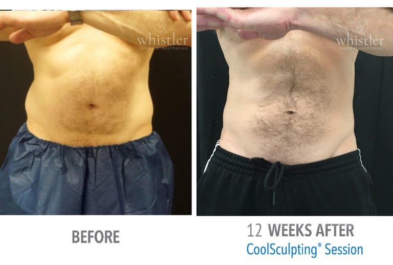 Coolsculpting Before & after 7