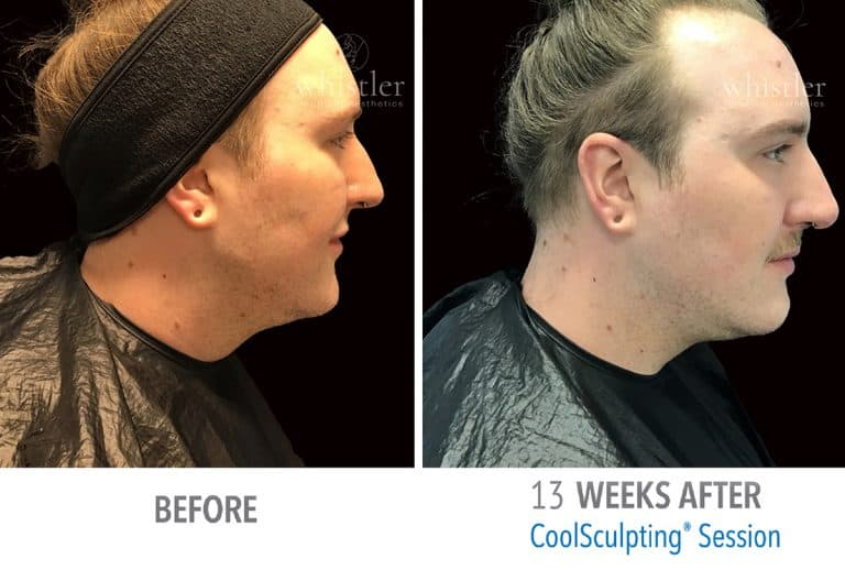 Coolsculpting Before & after 6