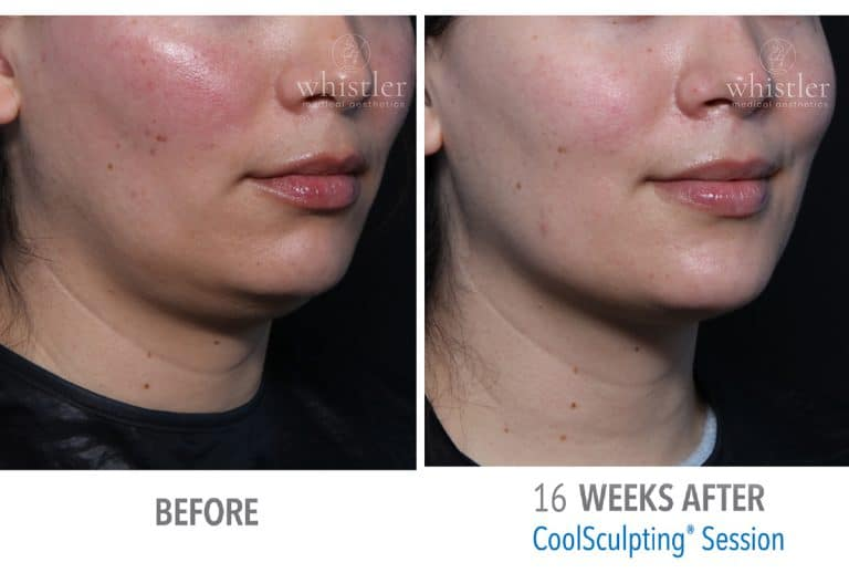 Coolsculpting Before & after 3