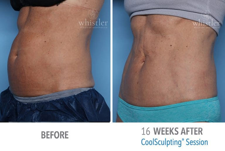 Coolsculpting Before & after 13