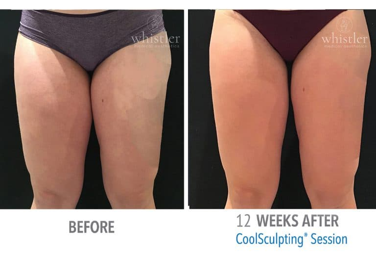 Coolsculpting Before & after 8