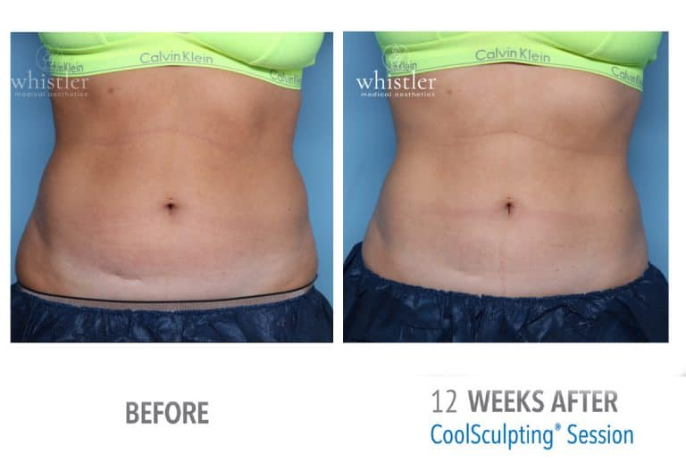Female front view abdominal coolsculpting