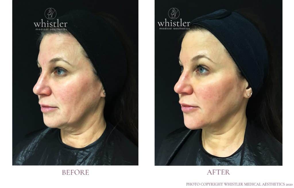 Full face lift - non-surgical
