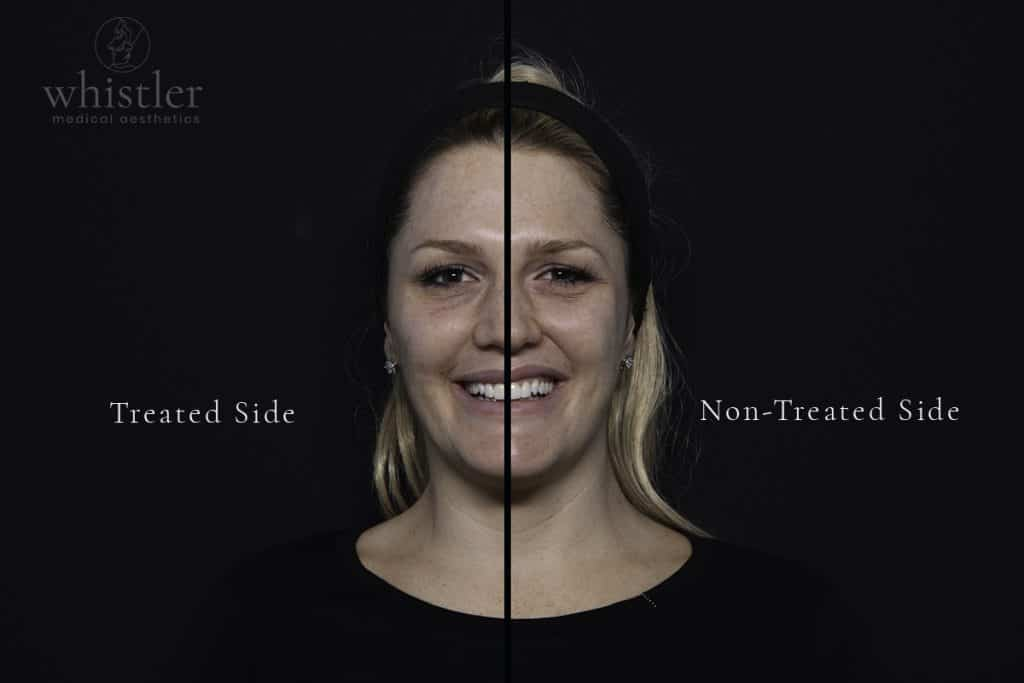 Photograph taken at midway point, where only half the face has been treated.