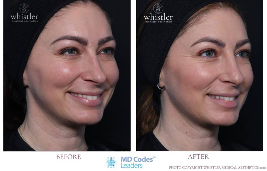 Lower face restoration of volume and non surgical nose correction