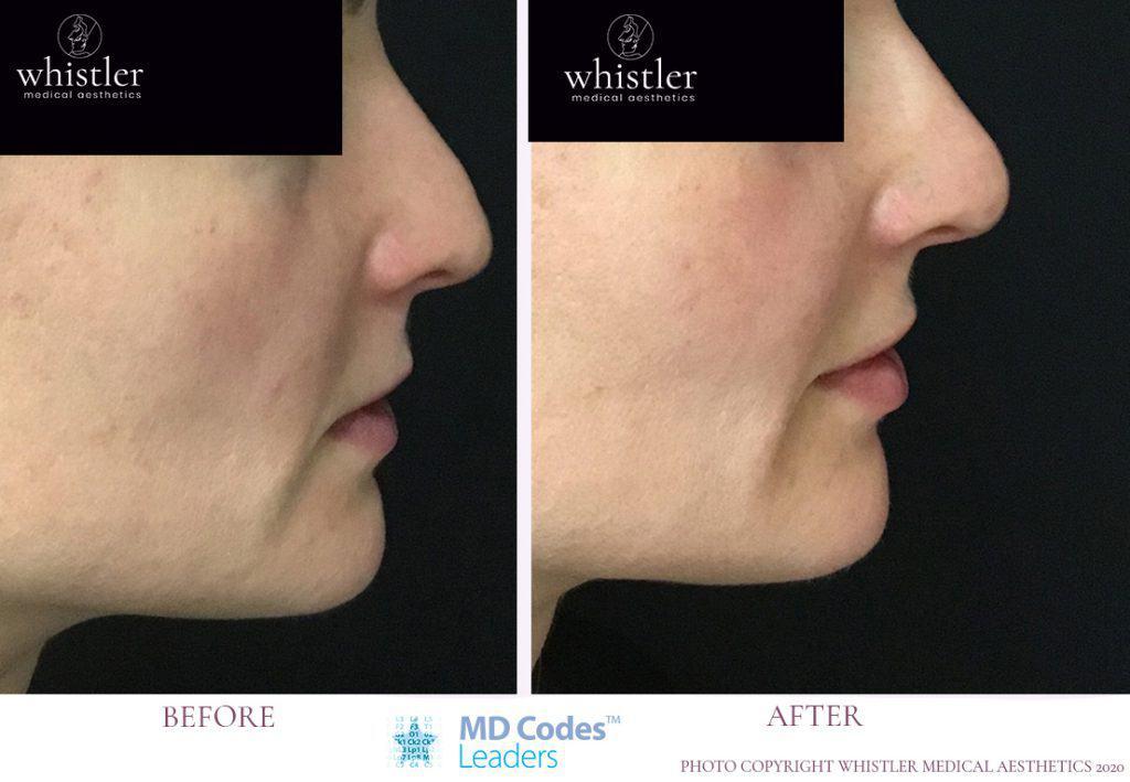 Non surgical Nose correction