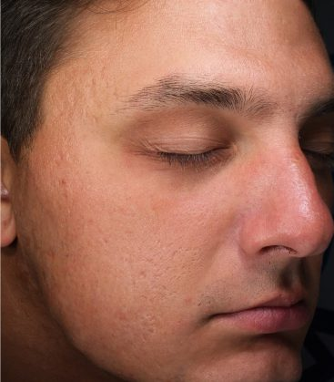 Male acne after