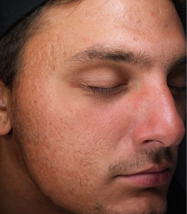 Male acne Before