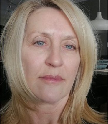 Beverly  Age 70 After treatment