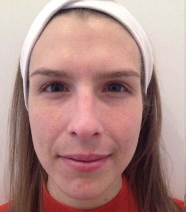 SkinPeel Skin Treatment Before