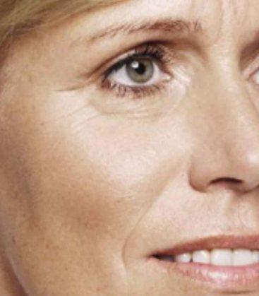 Aquagold Skin Treatment Before