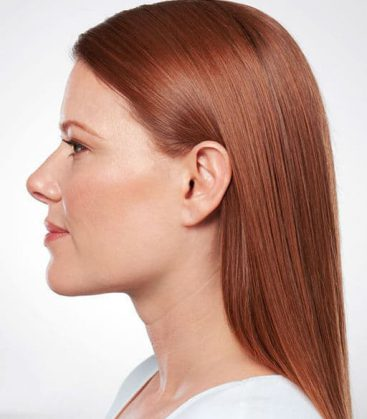 Belkyra Double Chin Treatment After