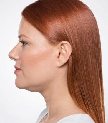Belkyra Double Chin Treatment Before