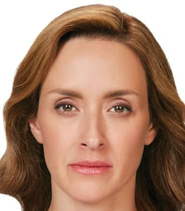 Botox Cosmetic Treatment After