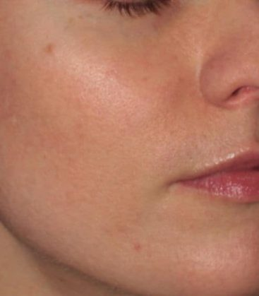 Clear Silk Skin Treatment After