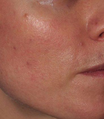 Clear Silk Skin Treatment Before