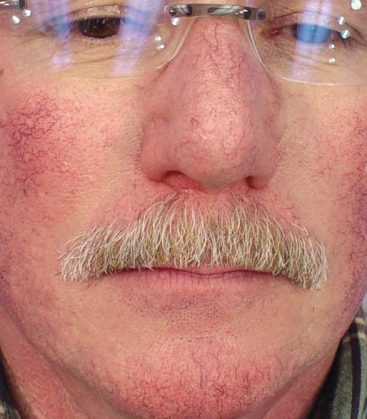 Clear V Before Treatment