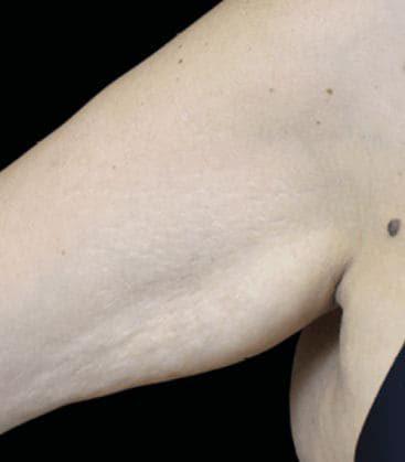 Emtone Treatment Arm After