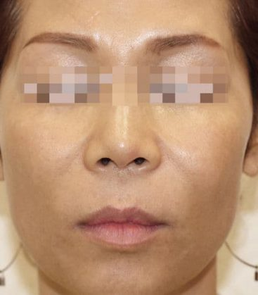 Forever Young BBL After Treatment