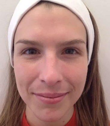 SkinPeel Skin Treatment After